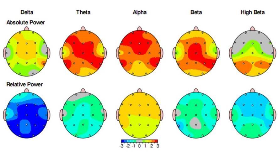 نتیجه تصویری برای نقشه مغزی